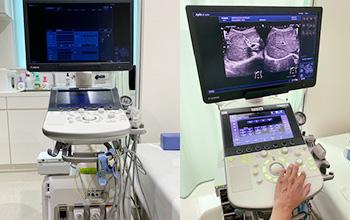 最新の超音波診断装置